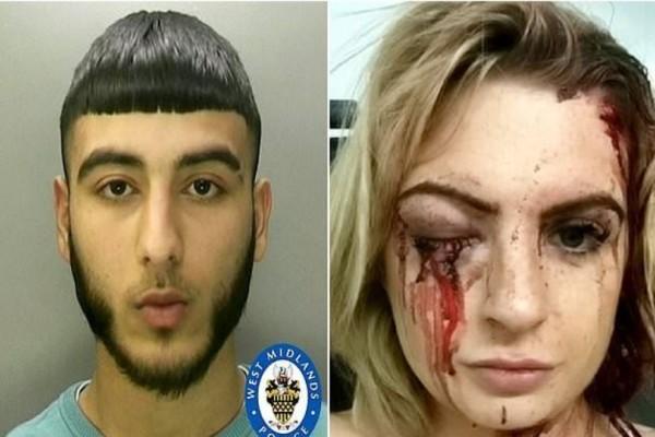 Φρίκη! Ένας 18χρονος χτύπησε με σφυρί μια γυναίκα στο κεφάλι και την άφησε τυφλή για τον πιο εξοργιστικό λόγο!