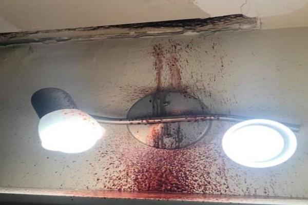 Άρχισε να τρέχει αίμα από το ταβάνι του μπάνιου του...Αυτό που είχε συμβεί στον πάνω όροφο θα σας σοκάρει!