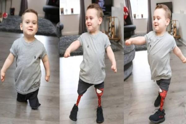 3χρονο αγοράκι που έχασε τα πόδια του από μηνιγγίτιδα, περπατάει ξανά με προσθετικά άκρα και συγκινεί