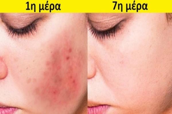 Φτιάξτε μείγμα με λεμόνι, κανέλα, μέλι και μοσχοκάρυδο και εφαρμόστε το στο πρόσωπό σας...Το δέρμα σας θα αλλάξει!