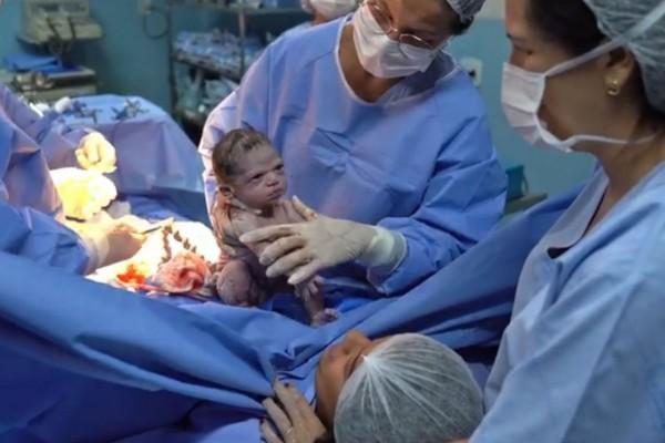 Το «δολοφονικό» βλέμμα νεογέννητου μωρού που έριξε το διαδίκτυο! (Video)