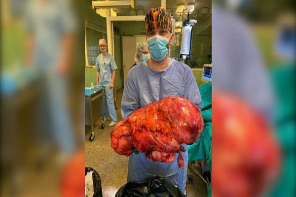 Γυναίκα ζούσε για δύο χρόνια με όγκο που έφτασε να ζυγίζει 15 κιλά! Δε θα πιστεύετε τον τρόπο που προσπάθησε να το αντιμετωπίσει! (video)