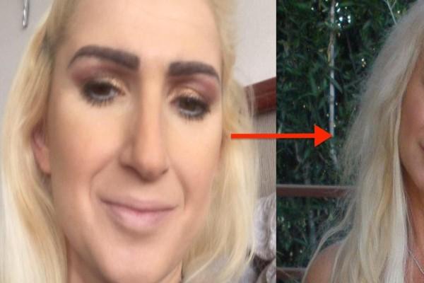 57χρονη κάνει πλαστικές για να μοιάσει στην 36χρονη κόρη της... Δείτε πώς έγινε!