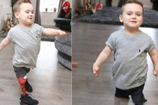 3χρονος που έχασε τα πόδια του από μηνιγγίτιδα έκανε τα πρώτα του βήματα με προσθετικά άκρα και συγκινεί