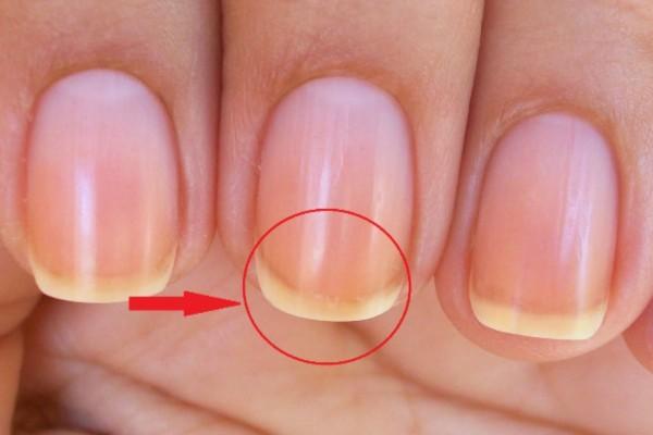 Προσοχή - Δεν φαντάζεστε γιατί τα νύχια σας είναι άσπρα στις άκρες!