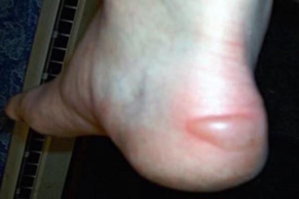 Πρoσοχή - Έχετε τέτοιες φουσκάλες στα πόδια σας; Πηγαίντε αμέσως σε έναν γιατρό!