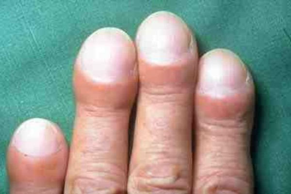Προσοχή: Τα νύχια σας είναι φουσκωτά; Μπορεί να κινδυνεύετε από...