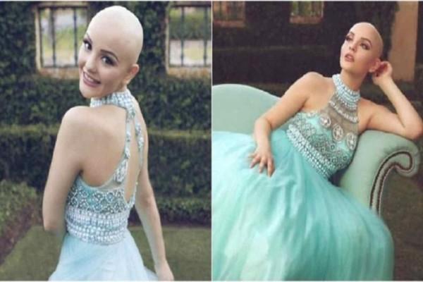 17χρονη καρκινοπαθής πρότυπο: «Ο καρκίνος δεν με εμποδίζει να είμαι πριγκίπισσα»