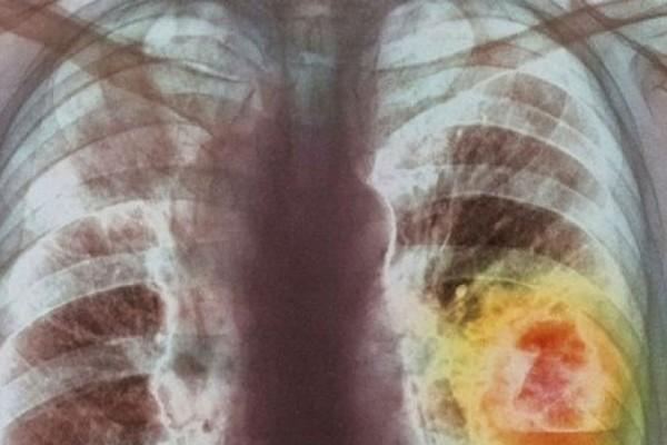Το 90% των κυττάρων του καρκίνου του πνεύμονα καταστρέφεται από αυτή τη φυτική ουσία - Θα πάθετε σοκ