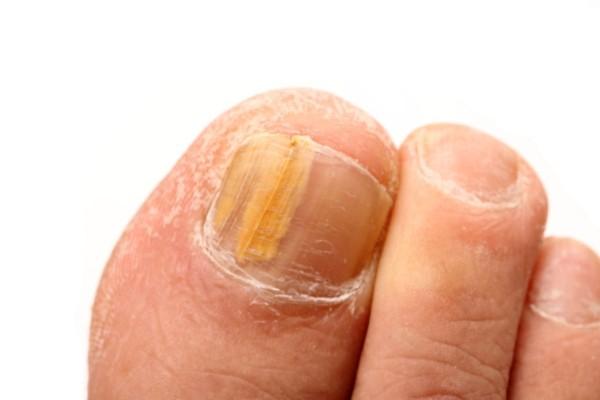 Αν τα νύχια σας στα πόδια είναι κίτρινα συνεχώς τότε κινδυνεύετε από...Μην το αγνοήσετε!