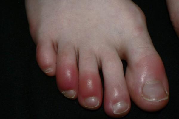 Τα δάχτυλα στα πόδια σας είναι κόκκινα ή μπλε; Μπορεί να κινδυνεύετε!