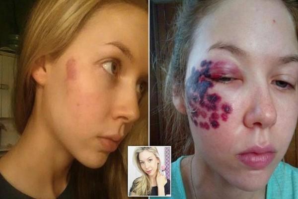 Γυναίκες προσοχή! Αυτή η γυναίκα κατέστρεψε το πρόσωπό της από κάτι που όλες κάνετε