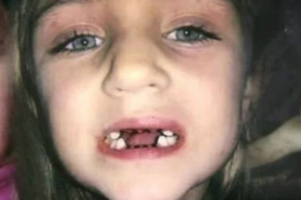 Η μητέρα πήγε στον οδοντίατρο την μικρή της κόρη για εξέταση - Όταν άνοιξε την πόρτα του ιατρείου τον είδε να...