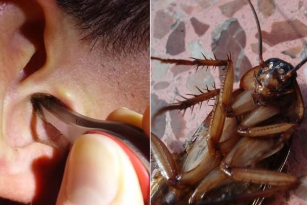 Εφιαλτική αποκάλυψη: Κατσαρίδες μπαίνουν στα αυτιά ανθρώπων όταν κοιμούνται και γεννάνε αυγά μέσα