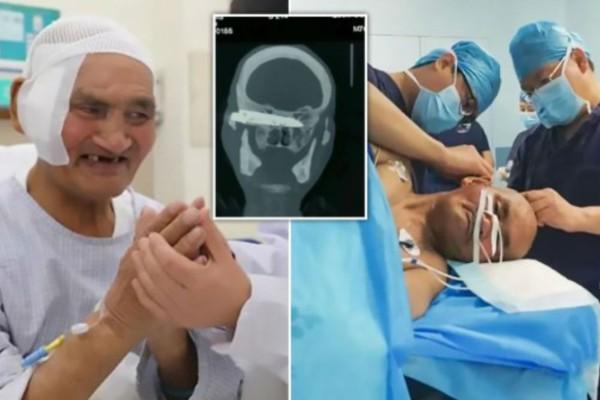 76χρονος πήγε στο νοσοκομείο γιατί πόναγε το κεφάλι του - Έπαθαν σοκ οι γιατροί με αυτό που είχε μέσα για... 8 χρόνια (photo)