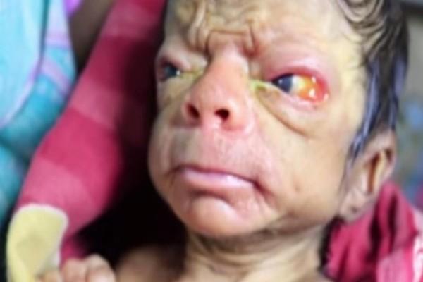 Οι γιατροί τρόμαξαν όταν είδαν αυτό το μωρό - Δεν έχετε ξαναδεί κάτι παρόμοιο