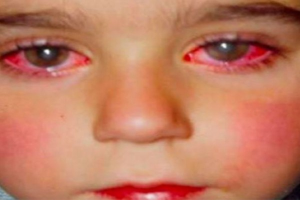 8χρονος έχασε την όραση του από ένα παιχνίδι που όλα τα παιδιά έχουν - Μεγάλη προσοχή