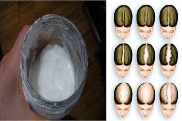 Το άγνωστο μυστικό μαγειρική σόδα: Σώστε τα μαλλιά και κάντε τα να μακρύνουν γρήγορα με αυτό το κόλπο