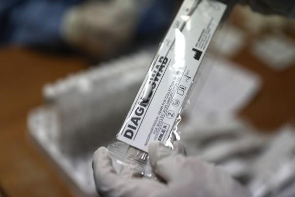 Ευχάριστα νέα: Κινέζοι βρήκαν αντισώματα που «σκοτώνουν» τον κορωνοϊό