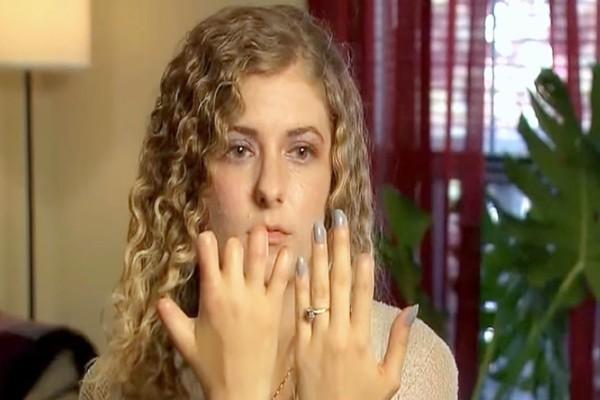 27χρονη ανέβασε πυρετό και έχασε τα δάχτυλά της μέσα σε λίγες μέρες - Προειδοποιεί για αυτόν τον κίνδυνο