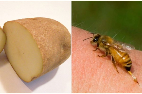 Έβαλε μια φέτα πατάτας πάνω στο τσίμπημα σφήκας - Ο λόγος; Θα σας αφήσει άφωνους