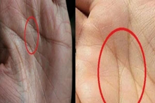Μήπως έχετε το γράμμα «Χ» στις παλάμες των χεριών σας; Δεν φαντάζεστε τι σημαίνει