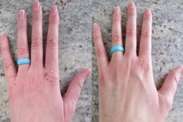 Ξεράθηκαν τα χέρια σας από το αντισηπτικό; Δοκιμάστε αυτό το μείγμα με κανέλα και θα εκπλαγείτε