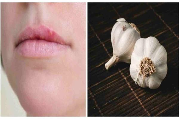 Έβαλε μια σκελίδα σκόρδο στα χείλη της και έδιωξε τον επιχείλιο έρπη οριστικά