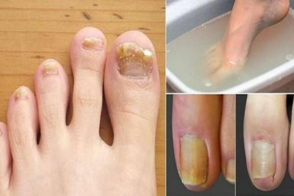 3+1 θεραπείες για να απαλλαγείτε από τους μύκητες στα νύχια - Κάνουν θαύματα