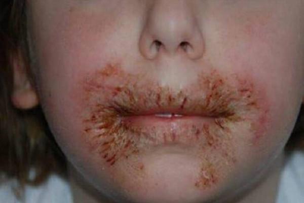 Προειδοποίηση γιατρού: Μην καθαρίζετε ποτέ τα παιδιά σας με...