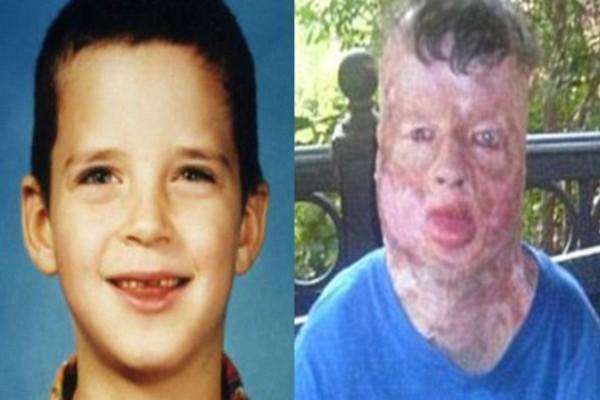 Όταν ήταν 8 ετών τον βίασαν και τον έκαψαν ζωντανό – 13 χρόνια μετά και λίγο πριν ξεψυχήσει, αποκάλυψε τον πραγματικό ένοχο…