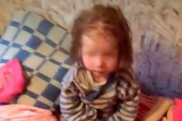 7,5 χρονών κοριτσάκι βρέθηκε πεινασμένο και σκελετωμένο - Ζύγιζε μόλις 9 κιλά
