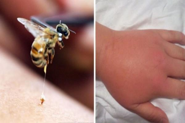 Πρώτες βοήθειες με μαγειρική σόδα και λεμόνι - Για τσίμπημα μέλισσας ή σφήκας