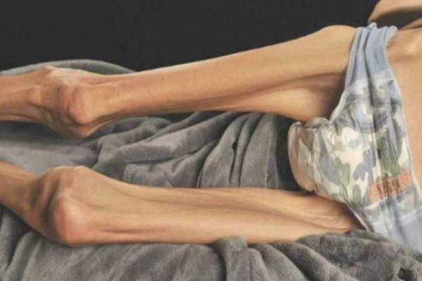 Πριν 5 χρόνια κόντεψε να πεθάνει από Νευρική ανορεξία. Σήμερα, δημοσιεύει φωτογραφίες της με μπικίνι