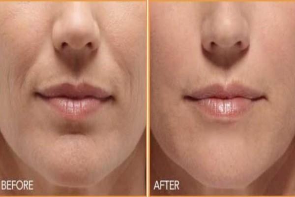 Τέλος στις αισθητικές επεμβάσεις - Διώξτε τις ρυτίδες γύρω από το στόμα μέσα σε 3 μέρες με...
