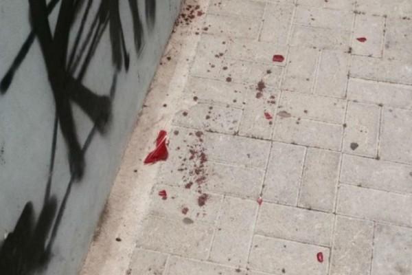 Μαχαιρώθηκε 15χρονος - Αιματηρή συμπλοκή μαθητών στου Ζωγράφου (Video)