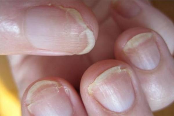 Σπάνε τα νύχια σας; Δείτε τι σημαίνει για την υγεία σας - Ανατριχιαστικό