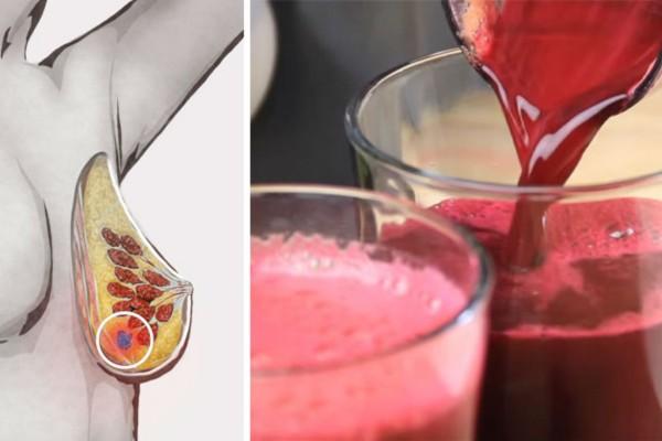 Θαυματουργός χυμός προστατεύει από τον καρκίνο και αποτοξινώνει το συκώτι - Δεν φαντάζεστε πόσο εύκολα φτιάχνεται