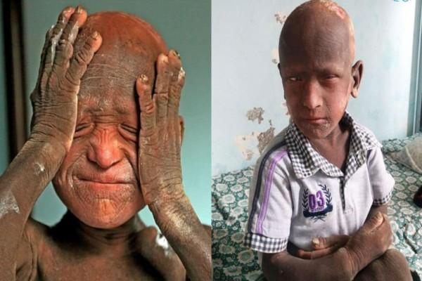 11χρονο αγόρι πάσχει από μια σπάνια ασθένεια - Το δέρμα του μετατρέπεται σε...