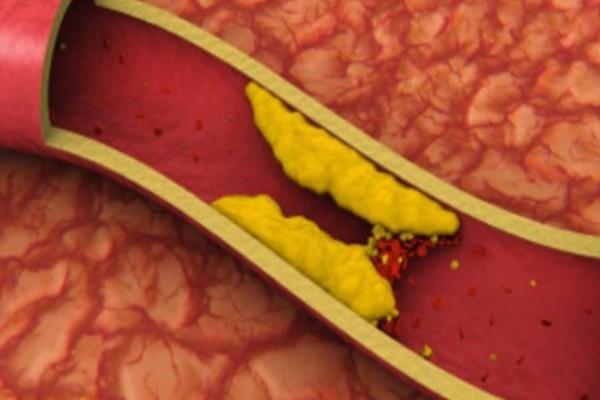 10 τροφές που καθαρίζουν τις αρτηρίες και σε προστατεύουν από καρδιακές επιπλοκές!
