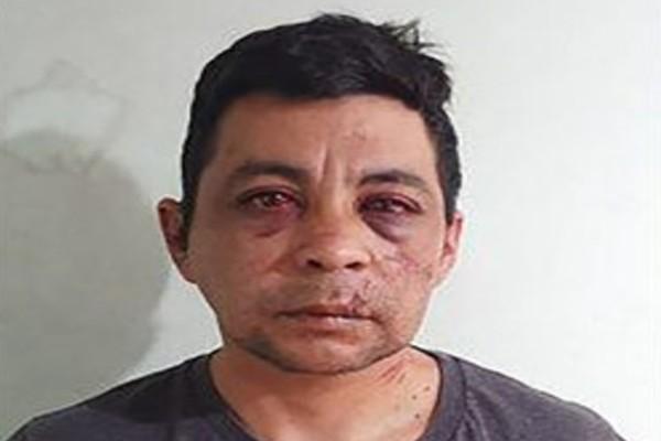 Απίστευτο: Τον έδειραν, του έκαψαν το σπίτι και του έκλεψαν το αυτοκίνητο... επειδή φοβούνταν τον κορωνοϊό