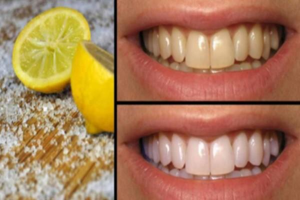 Λεμόνι το θαυματουργό: 4 τρόποι για να αντιμετωπίσετε όλα τα προβλήματα με τα δόντια σας