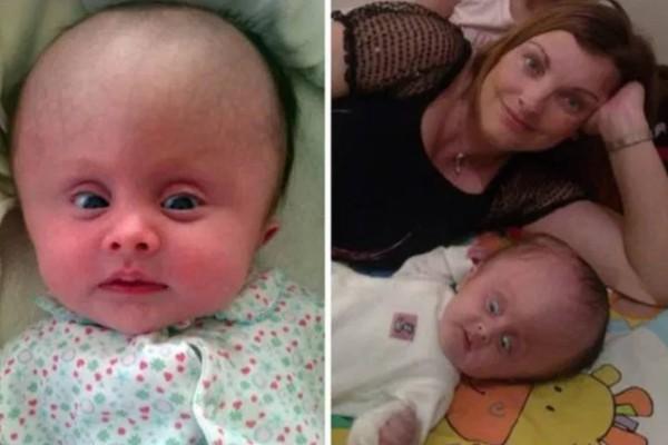 Οι γιατροί της ζήτησαν να τερματίσει την εγκυμοσύνη γιατί το μωρό της θα είχε «πρησμένο» κεφάλι και θα πέθαινε. Εκείνη δεν τους άκουσε και σήμερα η κορούλα της είναι 4 ετών!