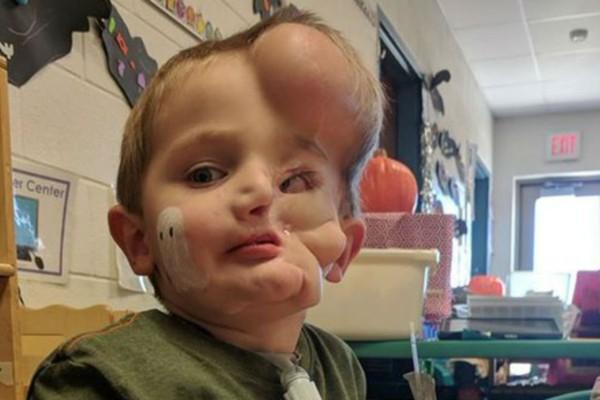 Ροντβάιλερ ξέσκισκαν το πρόσωπο 5χρονου - Τα παιδιά τον λένε «τέρας» (photo-video-Προσοχή πολύ σκληρές εικόνες)