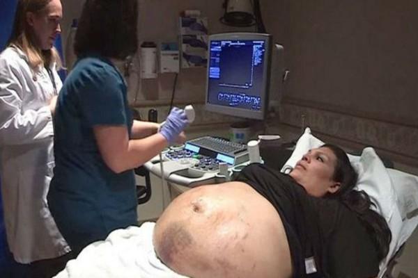 Η τεράστια κοιλιά 29χρονης είχε γεμίσει με μελανιές - Μόλις ο γιατρός είδε τον υπέρηχο πάγωσε... (Video)