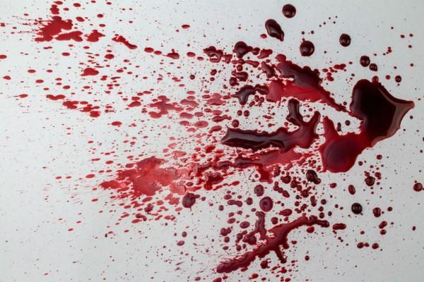 Το απίστευτο κόλπο με το αλάτι για να αφαιρέσετε τους λεκέδες από αίμα σε χρόνο μηδέν