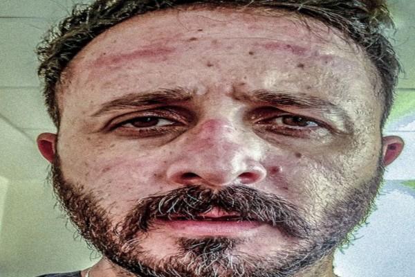 «Για σένα που αρνείσαι να φορέσεις μάσκα...» - Συγκλονίζει Έλληνας γιατρός
