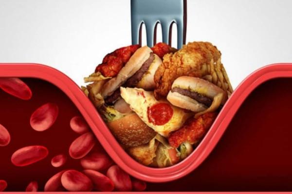 Χοληστερίνη: Αυτές οι 7 τροφές θα «ρίξουν» κατακόρυφα τα νούμερα