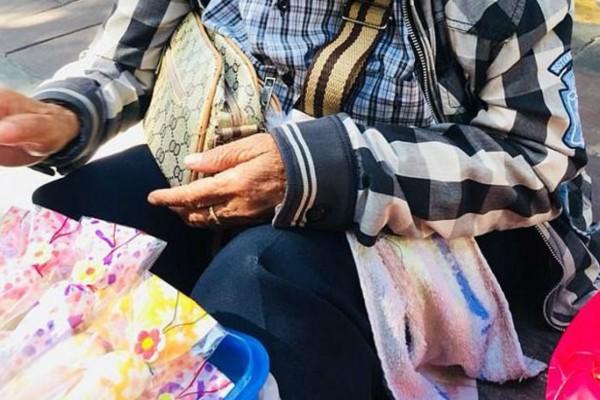 Αυτή η 63χρονη γιαγιά έχει την πιο σπάνια πάθηση - Μόλις δείτε το πρόσωπό της θα ανατριχιάσετε