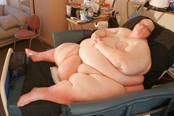Ο πιο χοντρός άνθρωπος στον κόσμο αδυνάτισε και έχασε 300 κιλά… Δείτε πώς έγινε!